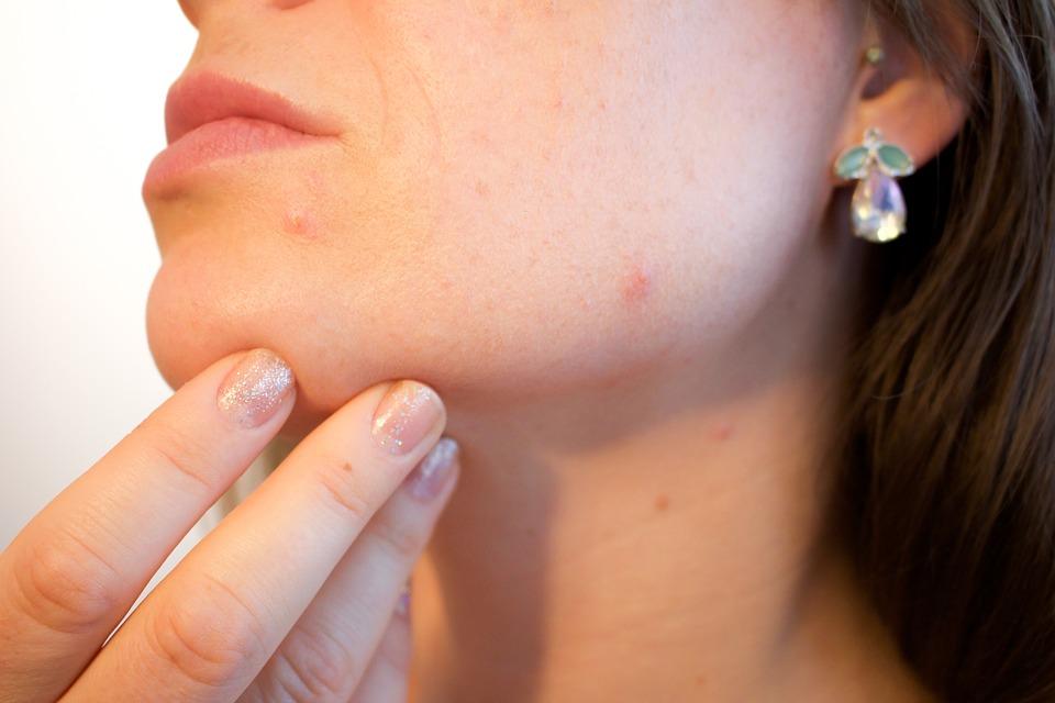 Bien choisir les méthodes contraceptives pour éviter l'acné